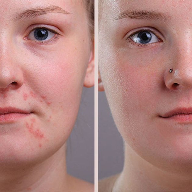 آموزش روتوش پوست