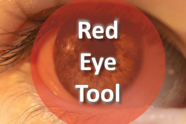 رفع قرمزی چشم در فتوشاپ